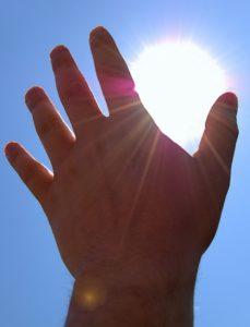sunburned-hand-1181698